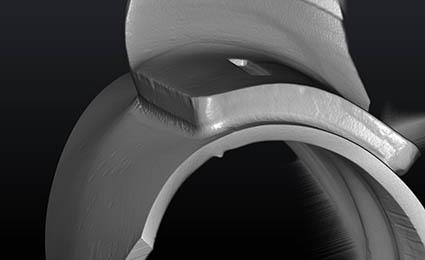 CT sken kritického v místa u svaru s držákem